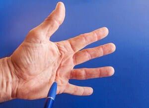 Penyakit Dupuytren (Dupuytren) - Punca, Simptom, Diagnosis dan Rawatan