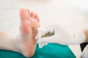 Kematian tisu badan 'Gangren' (Gangrene) - Jenis, Punca, Simptom, Diagnosis, Faktor Risiko dan Rawatan