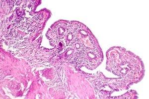 Keradangan Hempedu Kolesistitis (Cholecystitis) - Punca, Simptom, Diagnosis, Faktor Risiko dan Rawatan