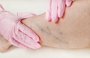 Trombosis Vena Dalam (Deep vein thrombosis) - Punca, Simptom, Diagnosis, Faktor Risiko, Komplikasi dan Rawatan