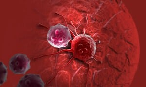 Histiositosis Sel Langerhan (Langerhans Cell Histiocytosis) - Punca, Simptom, Diagnosis dan Rawatan