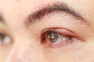 Mata Ketumbit
