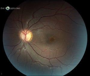 Retinoskisis Juvenil (Juvenile retinoschisis) - Simptom, Punca, Diagnosis dan Rawatan