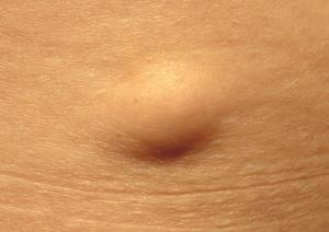 Lipoma (Lipoma) - Simptom, Punca, Diagnosis, Faktor Risiko dan Rawatan