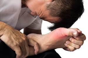 Telapak Kaki Panas (Erytromelalgia) - Simptom, Punca, Diagnosis dan Rawatan