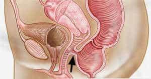 Fistula Rektovaginal (Rectovaginal Fistula) - Simptom, Punca, Diagnosis, Faktor Risiko dan Rawatan