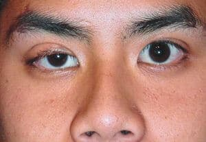 Myasthenia Gravis - Simptom, Punca, Diagnosis, Faktor Risiko dan Rawatan
