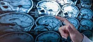 Kanser otak sekunder (Secondary brain cancer) - Simptom, Punca, Diagnosis, Faktor Risiko dan Rawatan