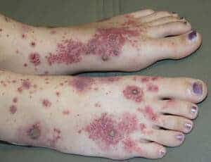 Purpura Henoch-Schonlein (Henoch-Schonlein Purpura) - Simptom, Punca, Diagnosis, Faktor Risiko dan Rawatan