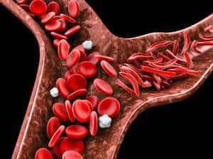 Anemia Sel Sabit (Sickle Cell Anemia) - Jenis, Simptom, Punca, Diagnosis, Faktor Risiko dan Rawatan