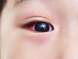 Konjunktivitis (Conjunctivitis) - Jenis, Simptom, Punca, Diagnosis, Faktor Risiko dan Rawatan