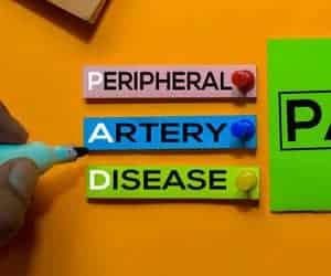 Penyakit Arteri Periferal (Peripheral artery disease) - Simptom, Punca, Diagnosis, Faktor Risiko dan Rawatan