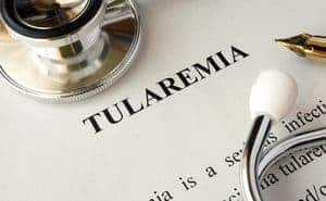 Tularemia - Simptom, Punca, Diagnosis, Faktor Risiko dan Rawatan