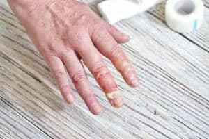 Pemphigus - Jenis, Simptom, Punca, Diagnosis, Faktor Risiko dan Rawatan
