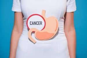 kanser perut