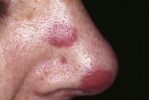 Sarkoma Kaposi (Kaposi Sarcoma) – Jenis, Simptom, Punca, Diagnosis, Faktor Risiko dan Rawatan