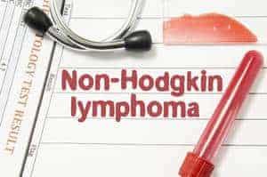 Limfoma Bukan Hodgkin (Non-Hodgkin's Lymphoma) – Jenis, Simptom, Punca, Diagnosis, Faktor Risiko dan Rawatan