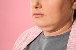 8 Cara Hilangkan Double Chin dengan Efektif