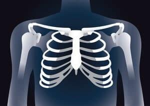 Costochondritis : Simptom, Punca, Faktor Risiko, Diagnosis, Rawatan