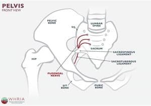 Saraf Pudendal Terperangkap (Pudendal Nerve Entrapment) : Simptom, Punca, Faktor Risiko, Diagnosis, Rawatan