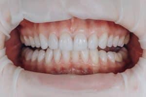 Veneer gigi