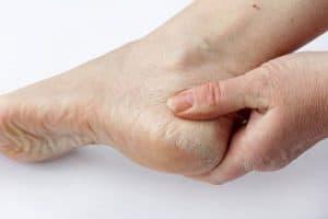 kulit kaki kering
